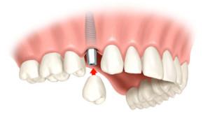 Cabinet stomatologic - implant dentar